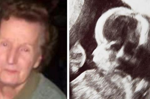 Wanita Ini Kaget Lihat Ada Wajah Nenek di Hasil USG