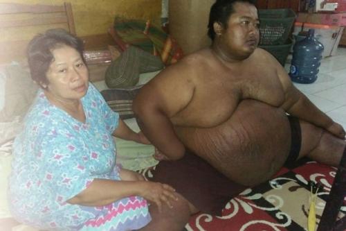 Yudi Penderita Obesitas Kerap Minta HP Android Sebelum Meninggal Dunia