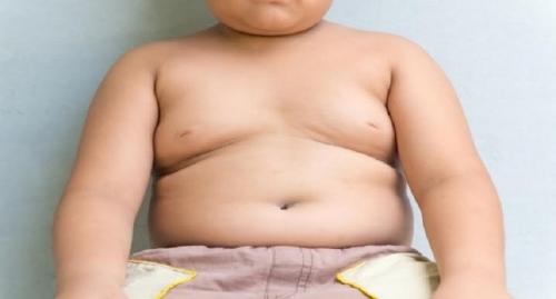 Anak Obesitas Cenderung Malas dan Mudah Minder