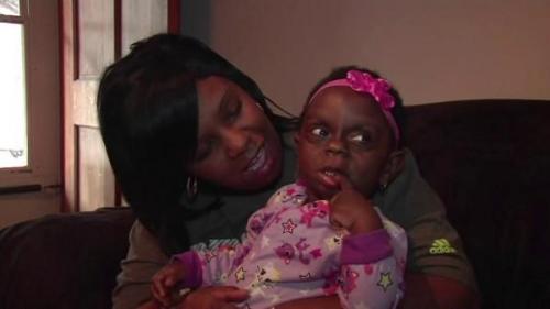 Sedih! Bayi Perempuan Ini Punya Masalah Kesehatan Langka, Sang Ibu Memotretnya dan Kini Viral karena Dibully