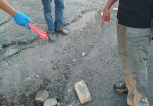 Wajah Bocah 9 Tahun di Depok yang Jadi Korban Aksi Lempar Batu Terancam Oprasi Plastik